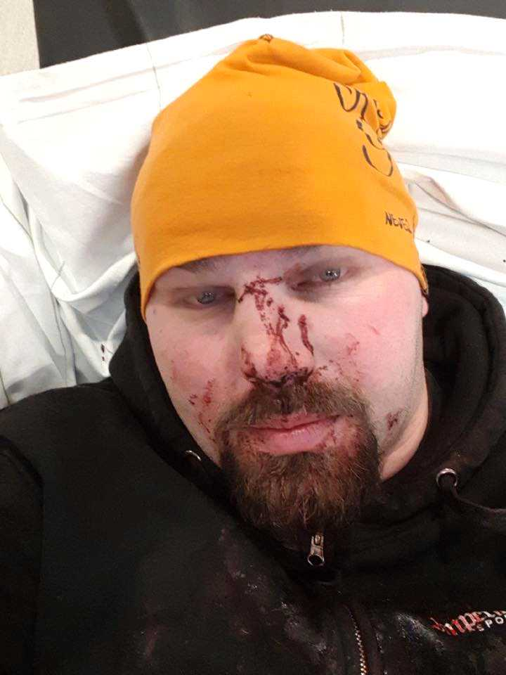 Han fick några tänder utslagna och sin näsa bruten.