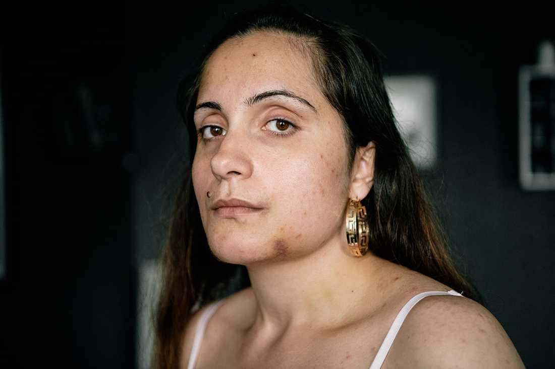 En okänd man attackerade Nathalie och slog av hennes käke.