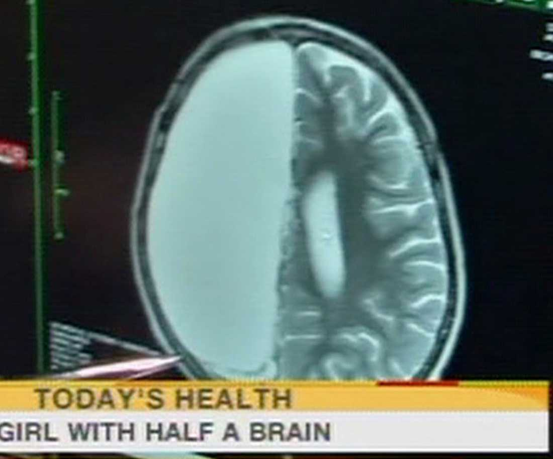 Röntgenbild av Camerons hjärna efter operationen.
