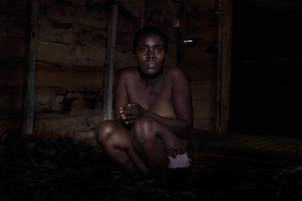 NICLAS HAMMARSTRÖM Georgette Byabaima, 44, blev våldtagen och torterad i sin by i Kongo av fem milismän.