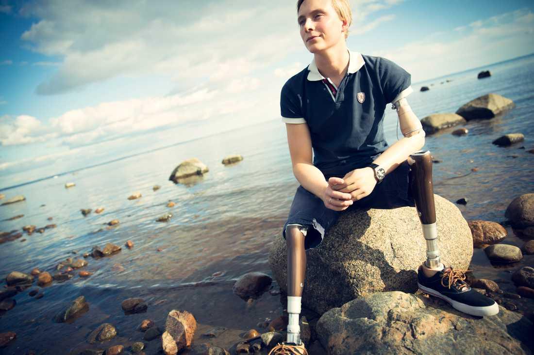 Efter att ha kämpa med att lära sig gå med proteser s insåg han att det var protesfoten det var fel på. Istället för att ge upp startade han företaget Lindhe Xtend som utvecklar bättre proteser.