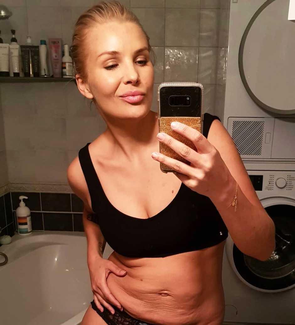 lös hud på magen efter graviditet