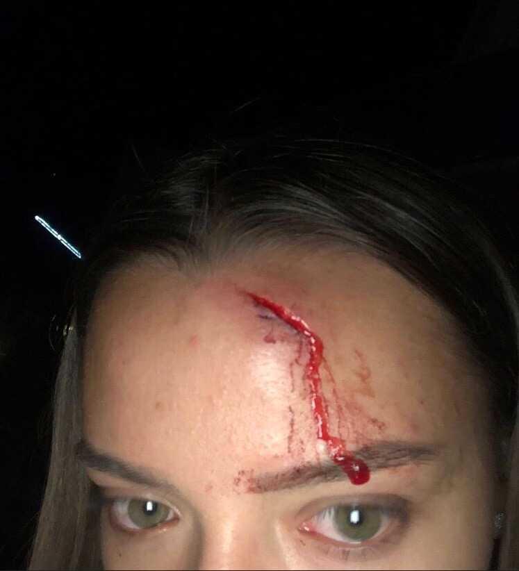 39-åringens utfall mot Tatjana resulterade i ett stort jack i pannan.