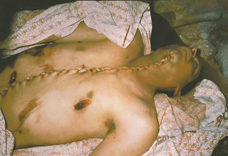 19-årige Bilal Achmeds kropp sprättades upp efter att han skjutits av den israeliska armén.