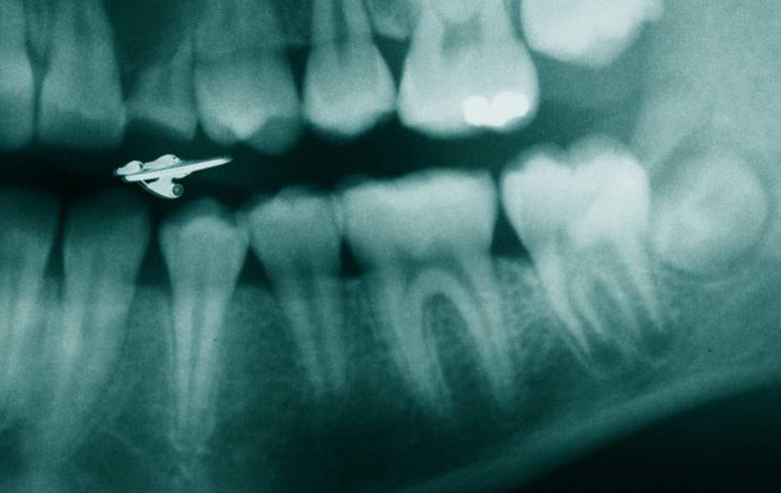 Oron för tandläkarbesöket minskade när Andrev Walden fick lära sig tandläkarspråket och upptäckte kopplingen mellan tandraden och rymdfilmer.