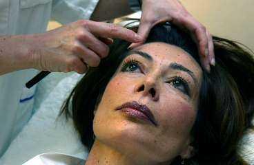 Danielle Fa visar på ansiktet var hon sätter injektionerna med ett pärlband av prickar i Anna Petterssons panna.
