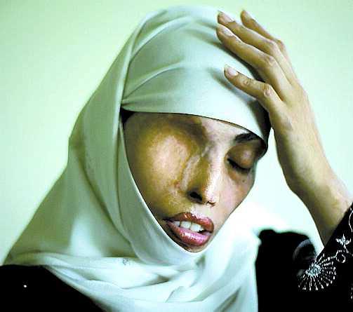 Irum Saeed, 30. Var på väg till marknaden för att handla mat. Då förändrades hennes liv för alltid. En behållare med svavelsyra träffade henne och brände sönder ansikte, axlar och rygg. Tolv år tidigare hade Irum tackat nej till ett frieri. Det stod henne dyrt – det var den ratade pojken som kastade syran.