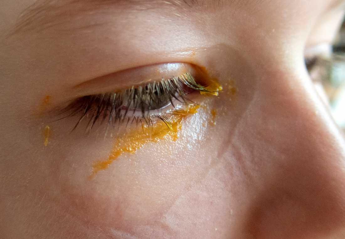 Huskur vid ögoninflammation: Tvätta ögonen med ljummet vatten och byt örngott varje dag. Låt barnet ha en egen handduk så att smittan inte sprids.