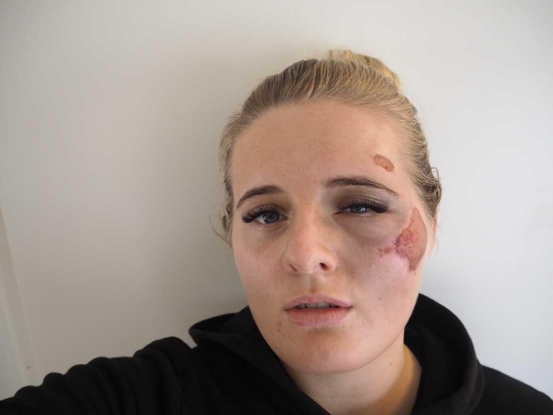 Martine Halvorsen blev misshandlad när hon skulle gå ut med soporna.