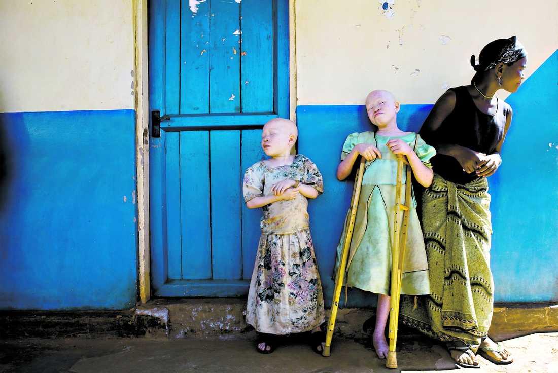 benet höggs av Bibiana Mbushi klarade sig levande från en attack där hon fick benet avhugget. Eftersom hon är albino tros kroppsdelarna ge tur i häxmediciner. Hon och lillasystern Tindichebwa, 7, bor nu på ett sjukhus i Geita i Tanzania.