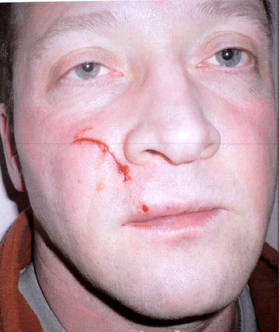Bild på Niklas Lindgren efter misshandeln. Två livstidsdömda mördare dömdes för att ha misshandlat honom i fängelset.
