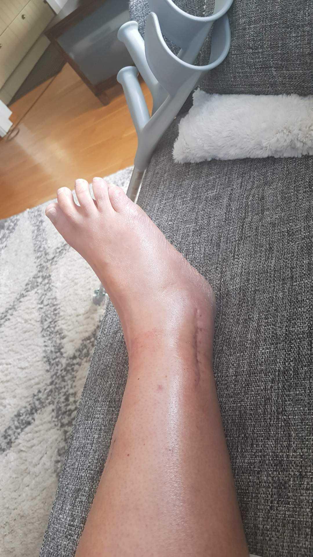 Förutom fotleden bröt Carina benet på två ställen.