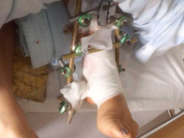 Birgittas fot fick lappas ihop med tolv skruvar