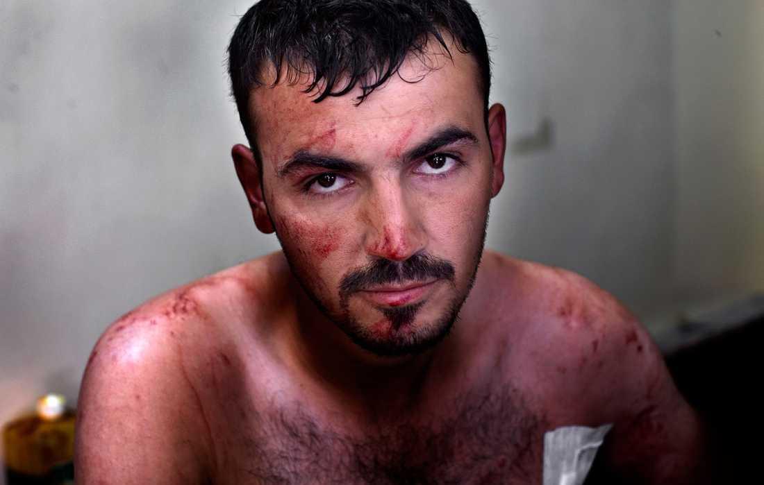 En kula har träffat Muhammed i bröstet, men den här gången hade han tur. Kulan gick rakt igenom och han kunde lämna sjukhuset efter bara någon timme.