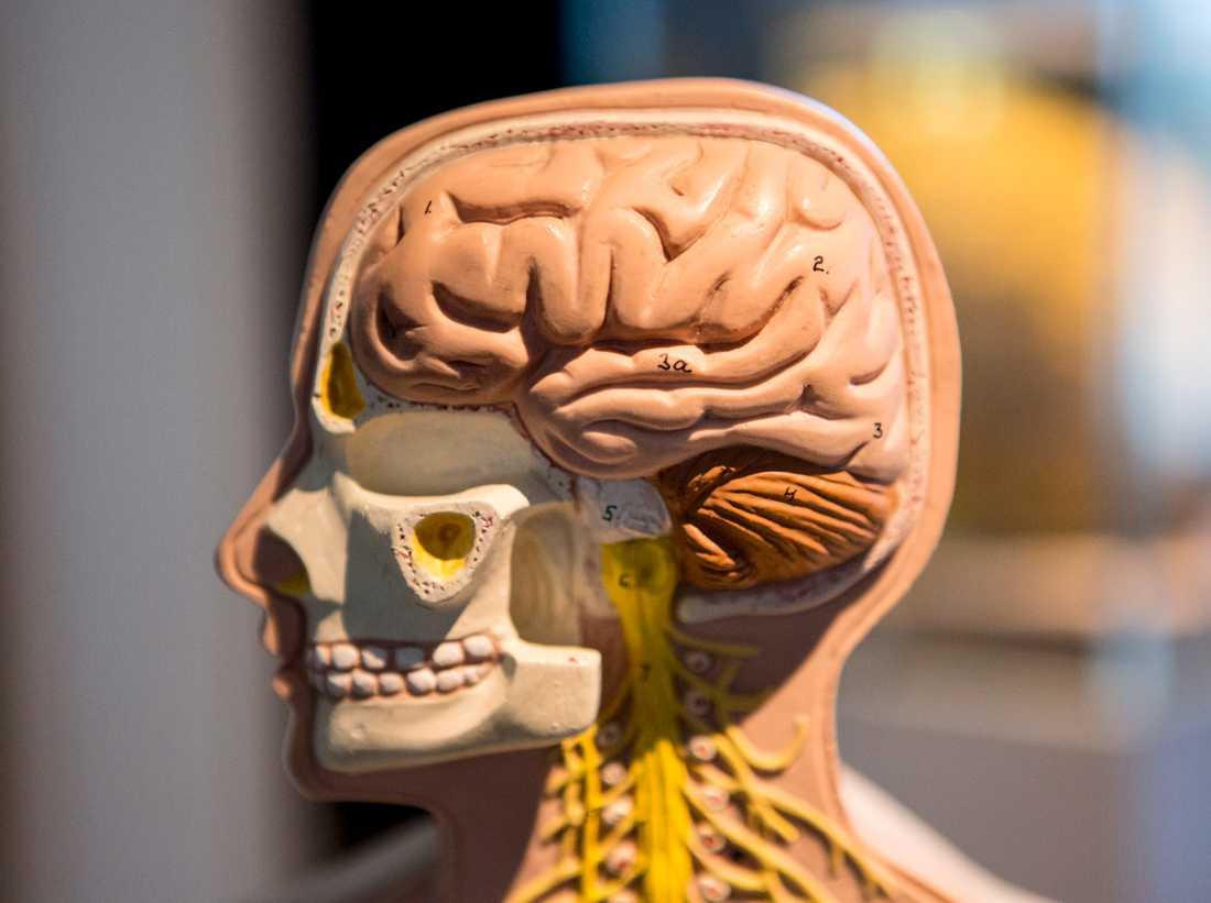 En stor studie bekräftar nu att personer med adhd har förändringar i hjärnan.