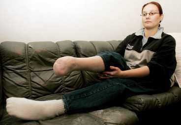 Ingrid Levander tvingades amputera sitt ena ben. Hon är övertygad om att p-piller hon åt orsakade det.