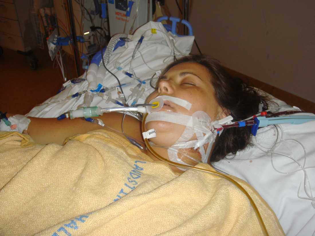 Sammanlagt gick det åt 84 påsar blod för att hålla Mia vid liv.