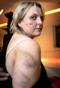 Dagen efter. Anna valde att visa upp sina skador i pressen efter krogskandalen.