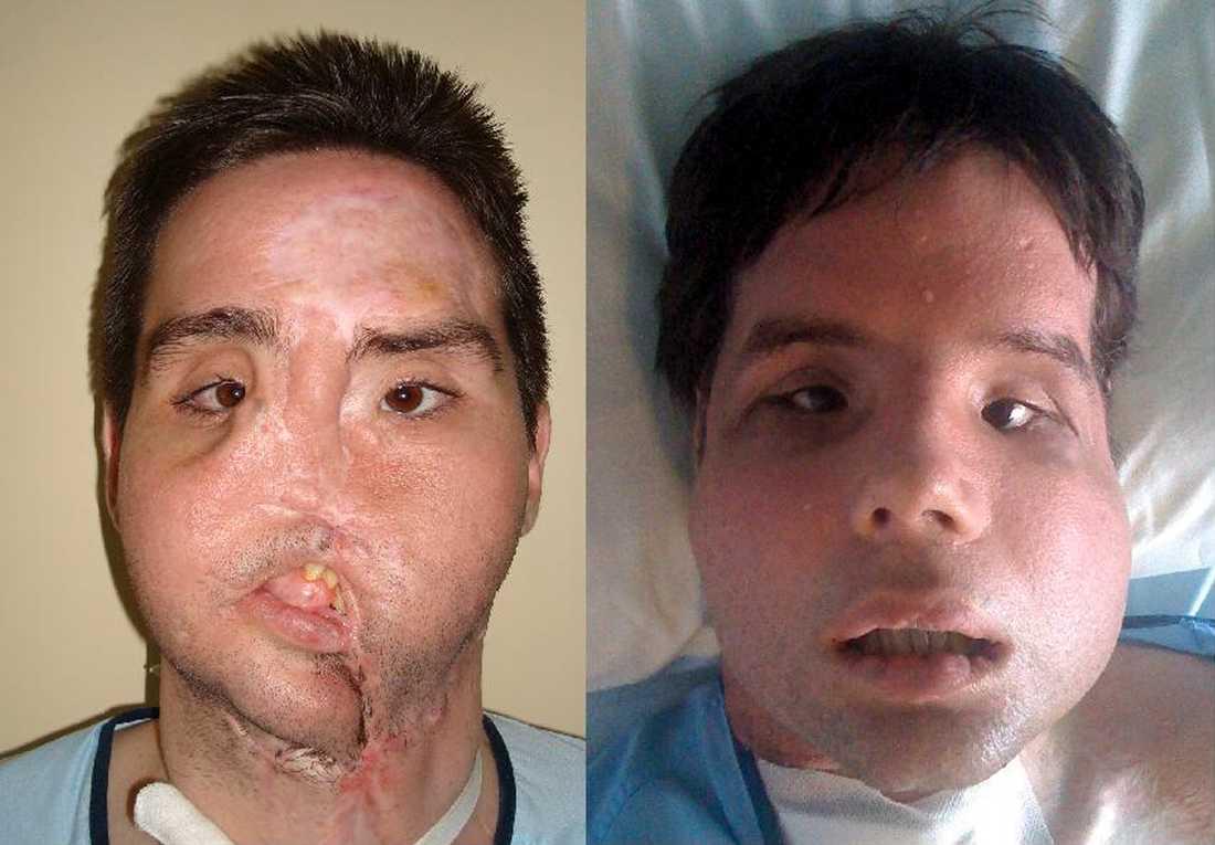 FÖRE OCH EFTER Oscar kommer att behöva 18 månaders rehabilitering för att få musklerna i ansiktet att börja fungera.
