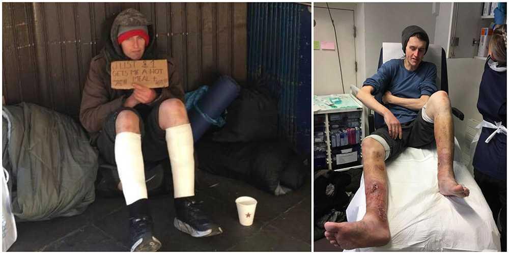 För ett år sedan var James uteliggare och i ett djupt heroinberoende. Han led av infekterade bensår.