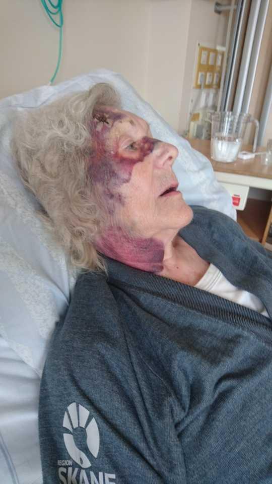 Estrid Holmér, 92, skadade sig när hon föll ur rullstolen på väg från affären.