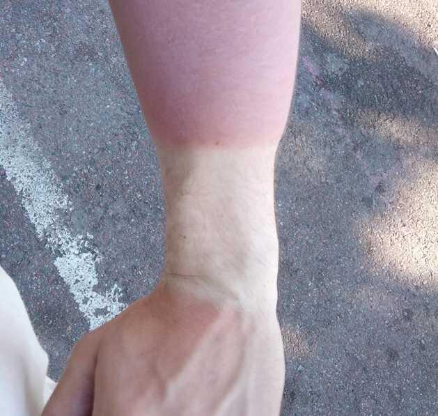 """Svettigt värre """"Sommaren 2009, under Peace & Love, gick jag runt med ett svettband runt vänstra handleden. Efter ett par dagar i solen såg jag ut såhär. Svullnad är ett för litet ord... Än idag syns en tydlig linje från solbrännan för två år sedan!"""""""
