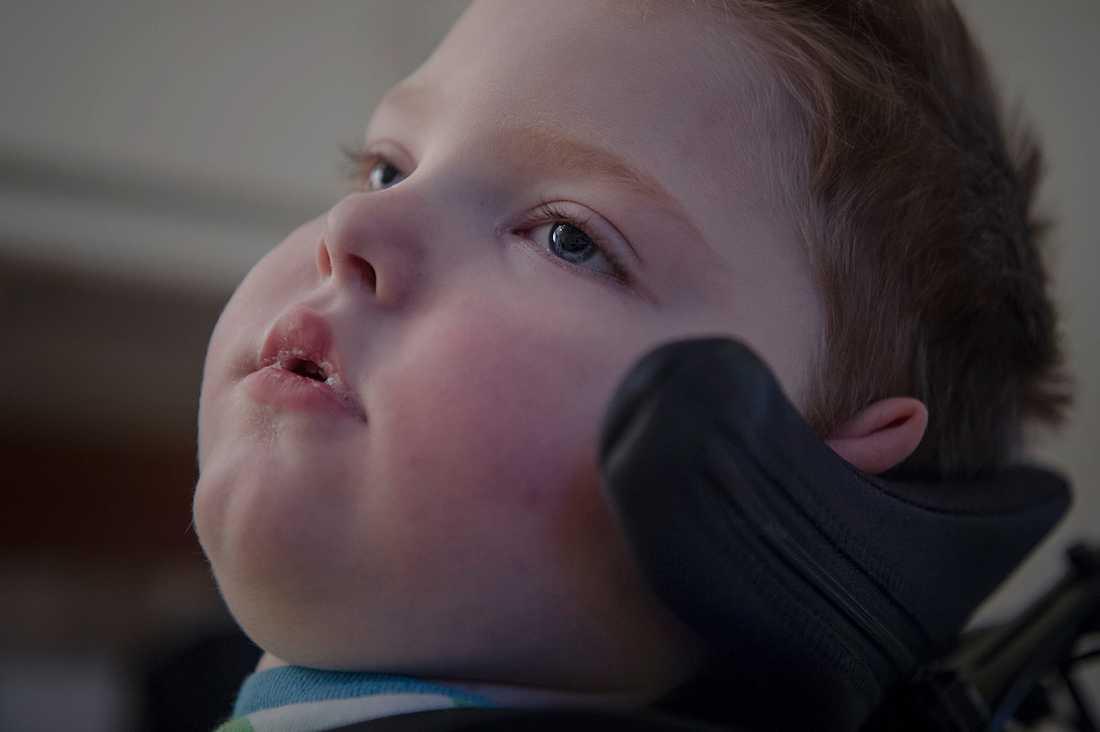 Olof, 2, har kraftigt nedsatt syn och ser inte. Han kan heller inte tolka hörselintryck, inte le, inte skratta, inte hosta, inte äta. Hans enda förmåga är att skrika när han har ont.