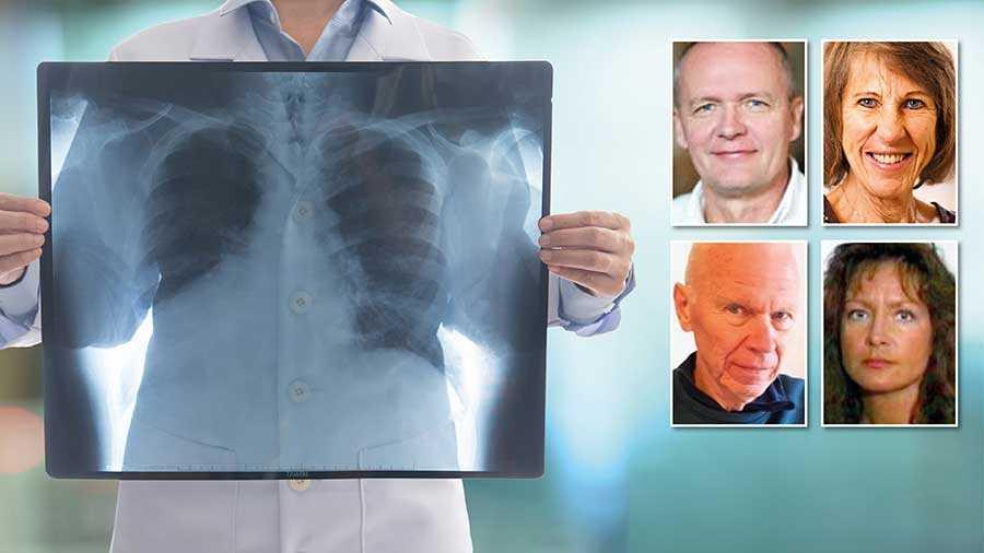 Lungcancerföreningen kräver att screening omgående införs för riskgrupper i hela landet. I Sverige skulle det rädda 400–500 liv per år, skriver debattörerna.