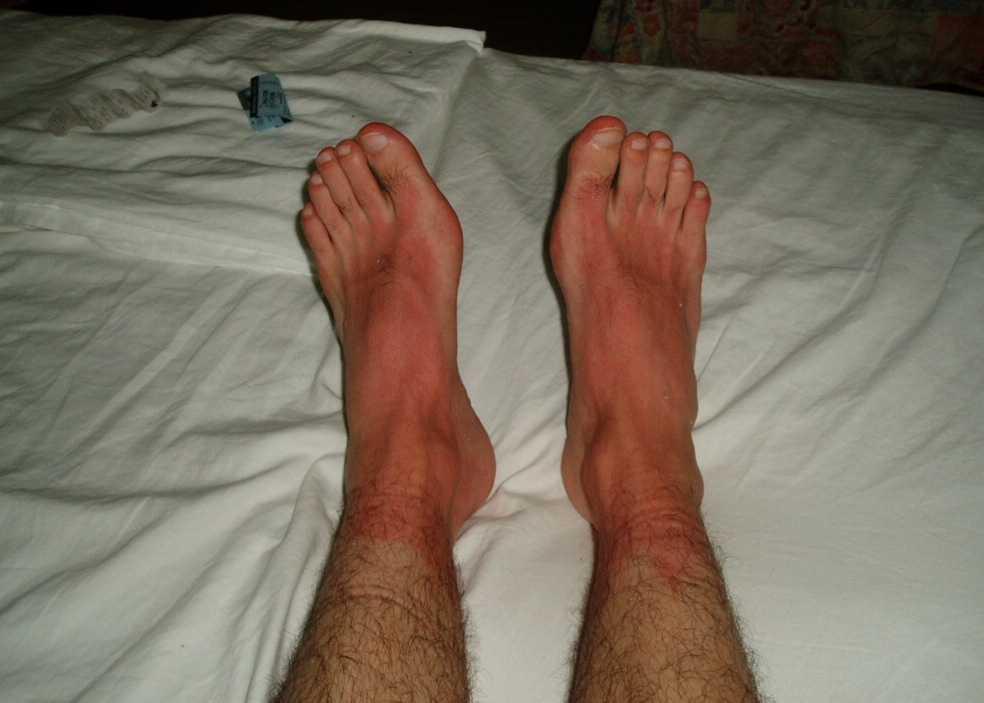 Märkt på Malta Dessa röda armar & fötter fick jag efter att ha slarvat med solskyddskrämen en solig dag på Malta!
