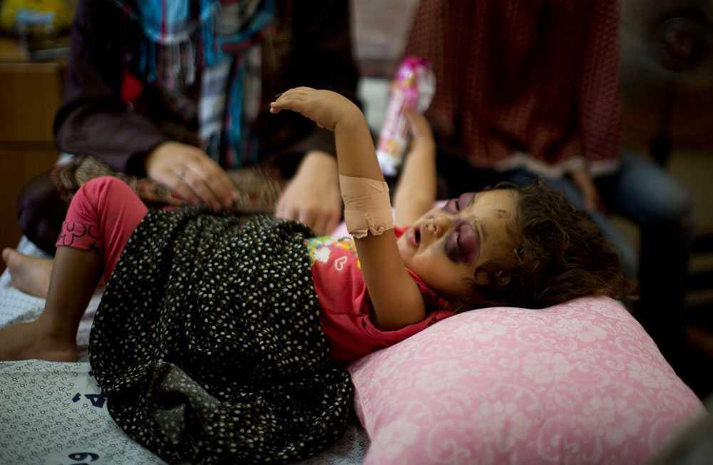En tvåårig palestinsk flicka som har skadats efter att Israel bombat ett område i närheten av hennes hem 23 juli. Lokala myndigheter beräknar att 4 000 människor har skadats hittills.