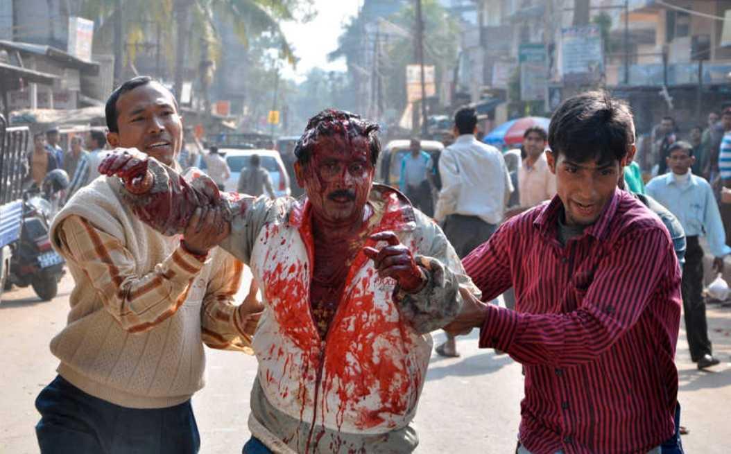 Vårdas på sjukhus Den chockade mannen fick hjälp till sjukhus där han vårdas för sina skador.