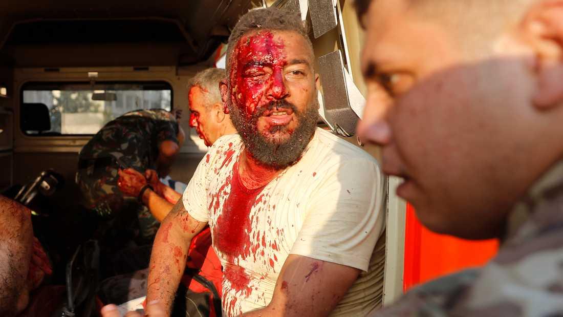 Tusentals har skadats i explosionen.