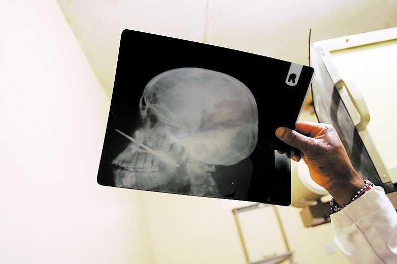 En man är träffad – pilen har gått rakt igenom skallen.