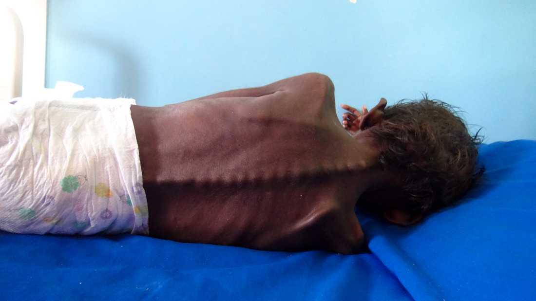 En femårig pojke vilar på en säng på ett sjukhus i staden al-Hudaydah i västra Jemen. Pojken lider av allvarlig undernäring och väger bara fem kilo. Arkivbild.