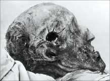 Karl XII:s kranium med kulhålet ska undersökas – igen. Blev han mördad? Sköts han med kulknappen? Kan frågorna nånsin besvaras?