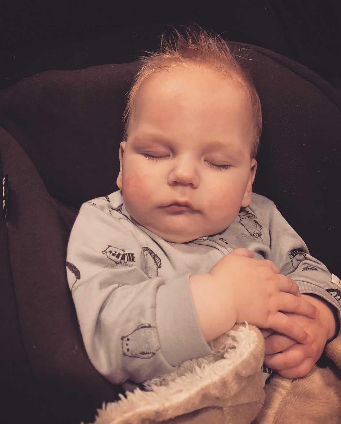 Han har dock fått en hjärnskada till följd av hjärtstoppet.  I dag är han sju månader gammal.