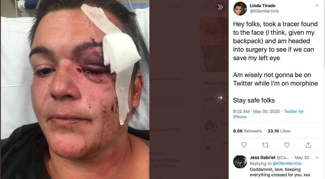 På Twitter berättar frilansfotografen Linda Tirado om läkarnas kamp för att rädda hennes öga.