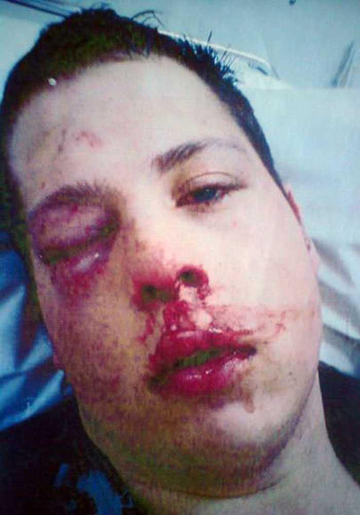 Bild ur förundersökningen på den misshandlade Joakim Holm. Händelsen inträffade för ett år sedan, men först nu kommer åtalet, och Joakim själv är en av de åtalade.