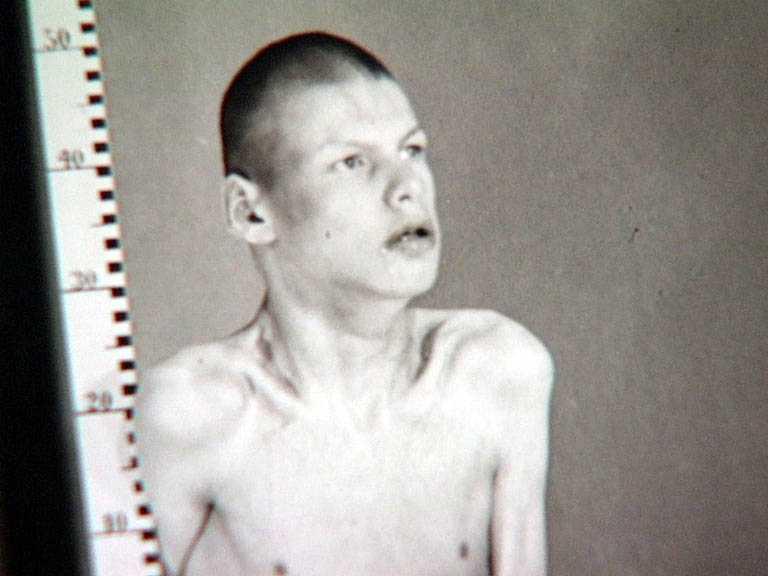 De som skrevs in på Vipeholm fotograferades. Som här bredvid ett måttband. Bilderna finns kvar. Varför vet svenska folket så lite om vad som hände här?
