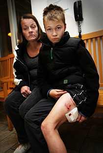 11-årige Martin blev hundbiten i Tensta.