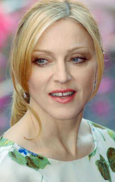 Madonna gillar botox.