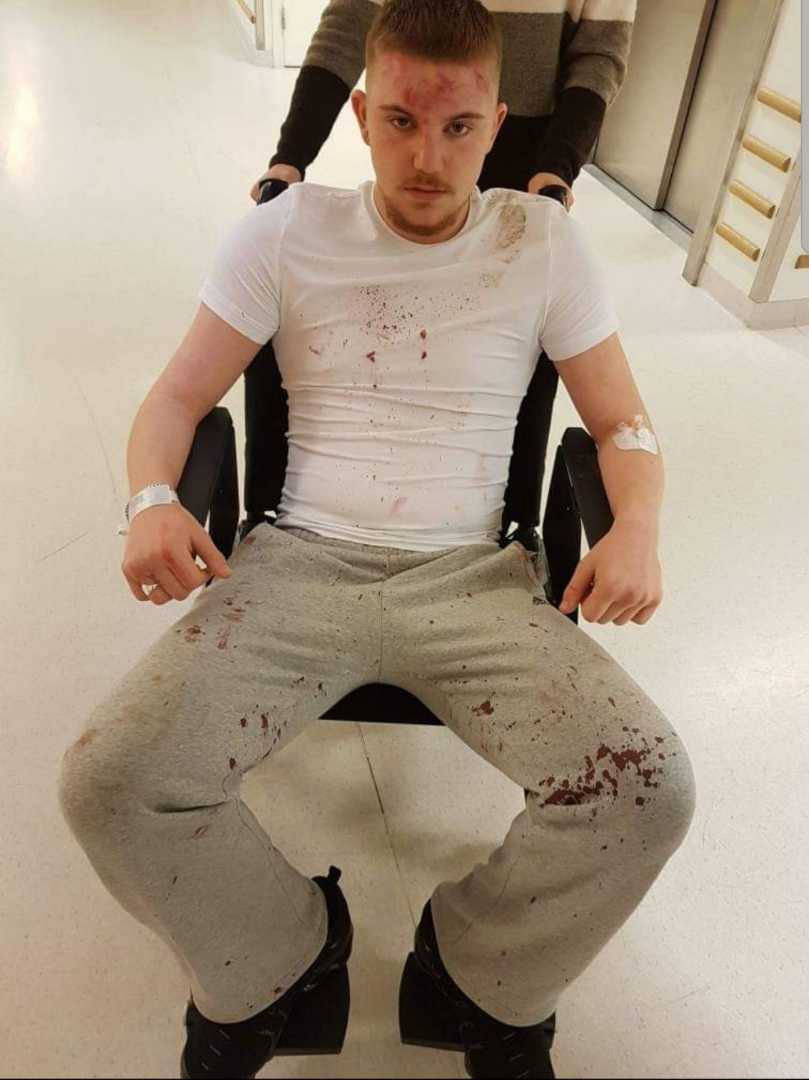 De hoppade på hans huvud och slog honom blodig.