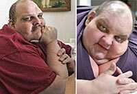 efter och före Patrick Deuel har bantat bort halva sin kropp.