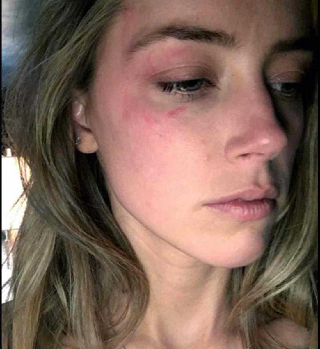 Amber Heard visade upp bilder på sig själv blåslagen i rätten under fredagen.