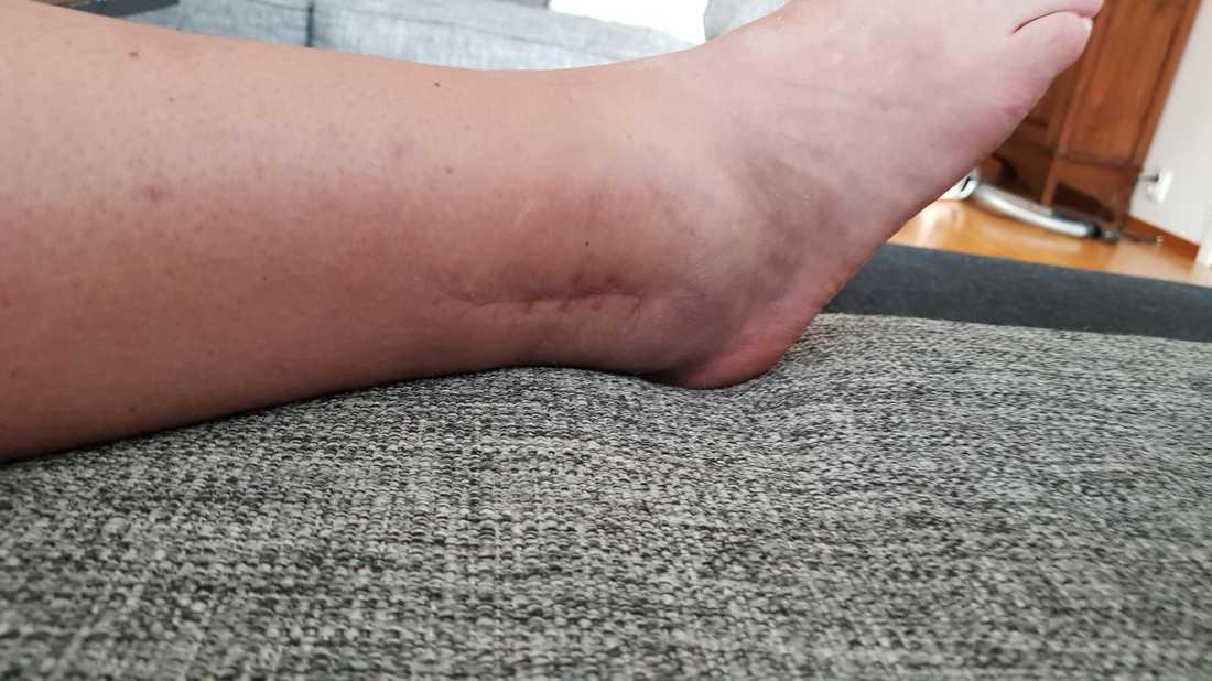 Carina halkade med cykeln och bröt fotleden.