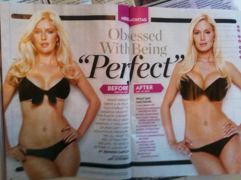 Den amerikanska tidningen People visar alla Heidis operationer.