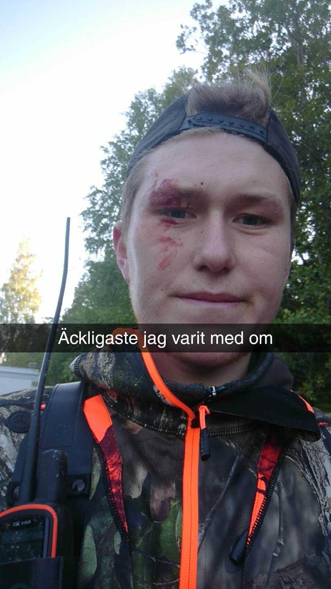 Axel skickade en bild på sig själv till sina vänner på Snapchat direkt efter det dramatiska mötet.
