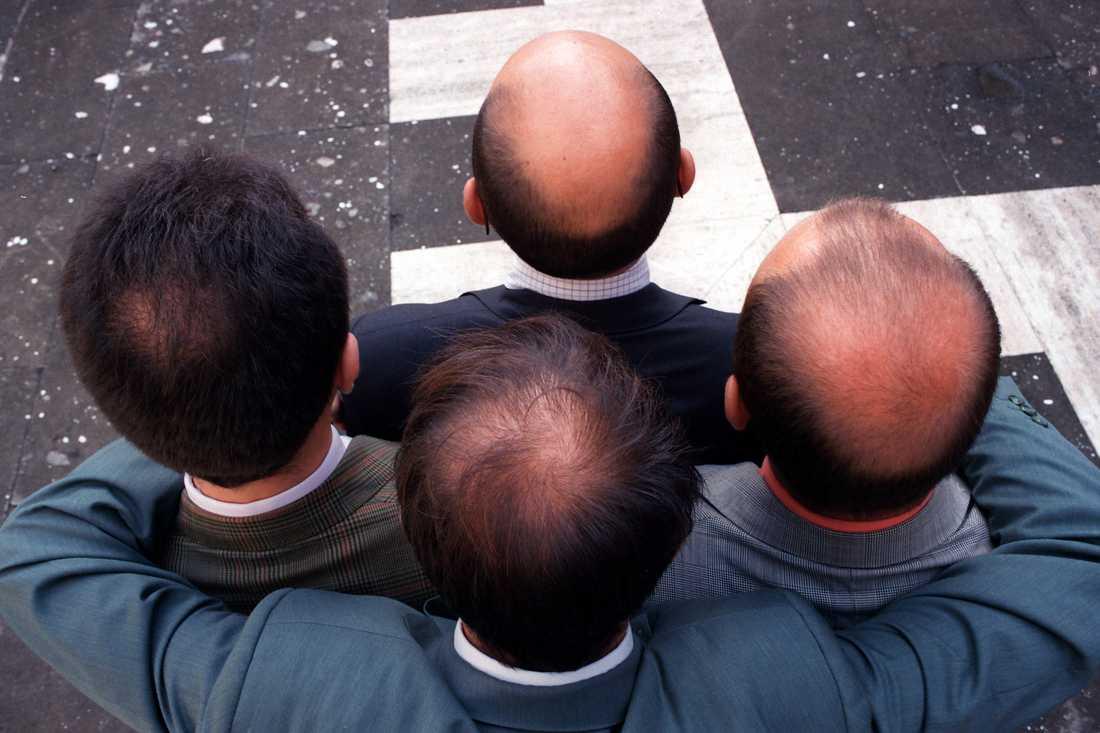 Forskarna bakom studien såg ett samband mellan de som jobbade övertid och håravfall.