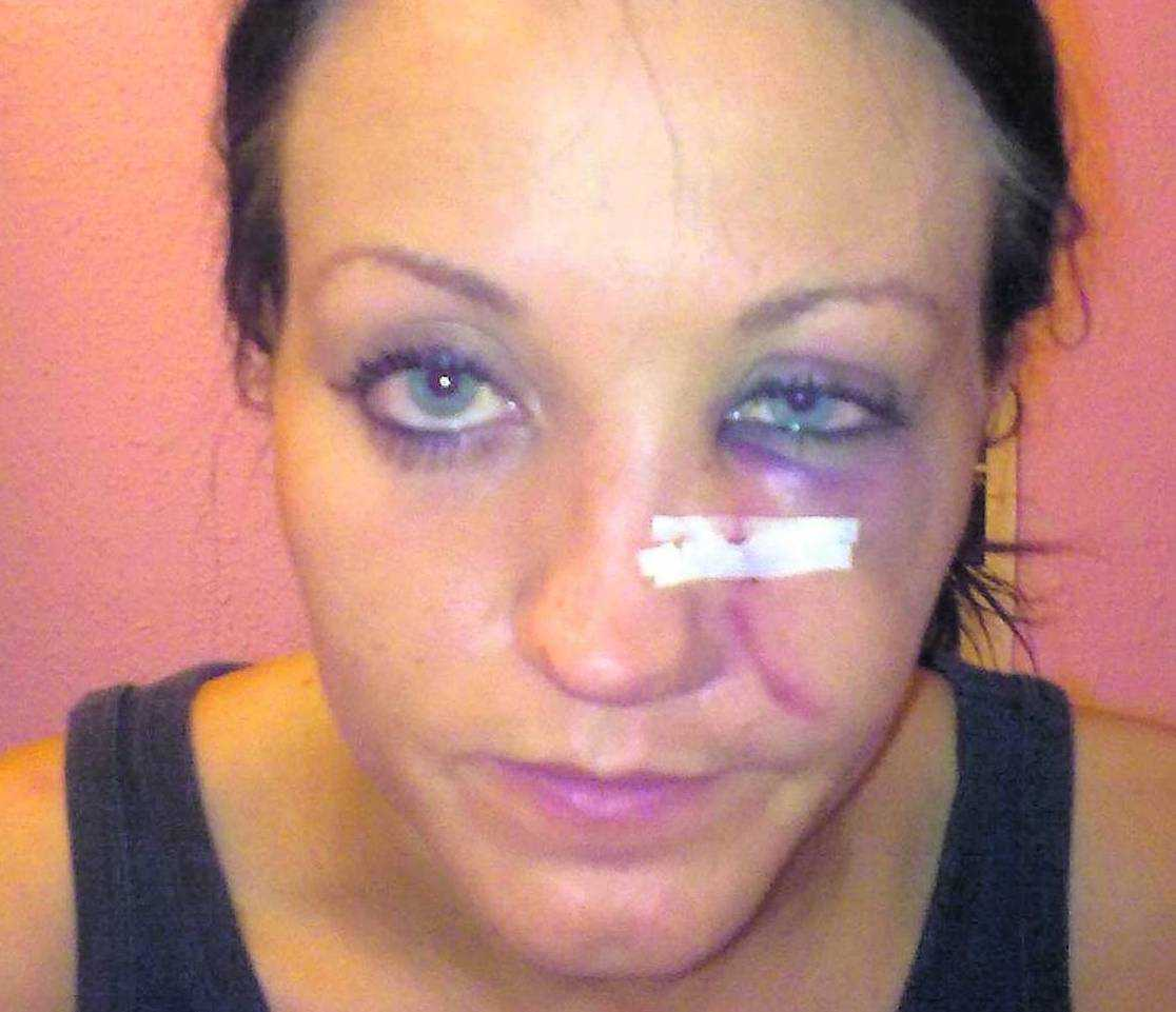 blev nästan blind 20-åriga Jennifer Wilson blev slagen med ett glas av en främmande kvinna. Sedan polisen gett upp sitt spaningsarbete lyckades hon själv spåra upp brottslingen som senare dömdes till böter och samhällstjänst.