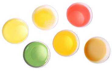 röda och vita blodkroppar i urinen